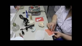 Изготовление съемного протеза из светоотверждаемого базисного материала НОЛАТЕК