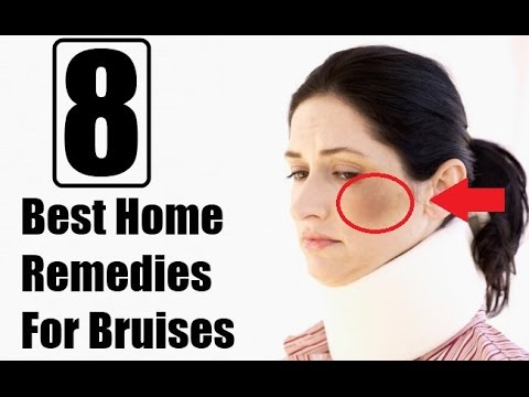 Best Home Reme For Bruises