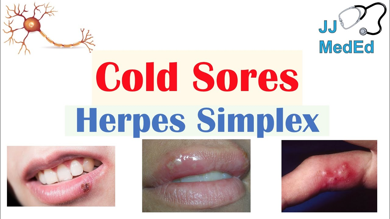 Cold Sores Oral Herpes Causes Signs Symptoms Treatment Youtube