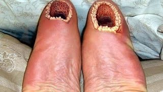 7 Strangest Medical Conditions