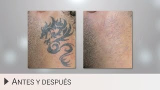 Eliminar tatuajes con láser - Antes y después