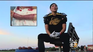 Life-Changing Boating Accident Helps Woman Remember Her 'Passion' For Football