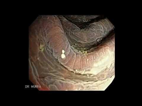 colonoscopia-de-melanosis-coli-severa