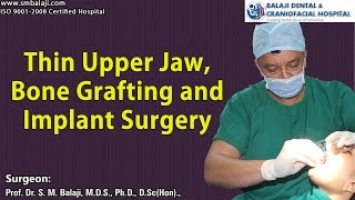 Thin upper jaw, bone grafting and implant surgery
