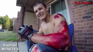 Acidentes de mota | Maiores 18 anos | Imagens fortes