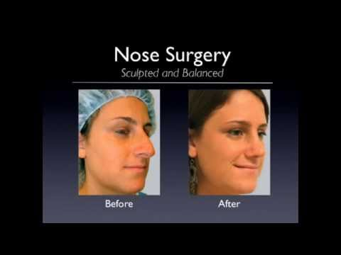 Plastic Surgery in Boca Raton, South Florida