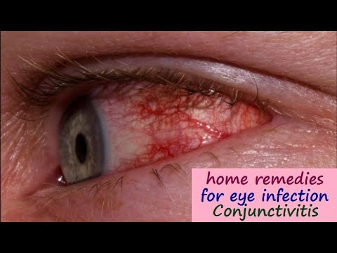 Eye Infection (Conjunctivitis) Home Treatment & Prevention - Pink Eye