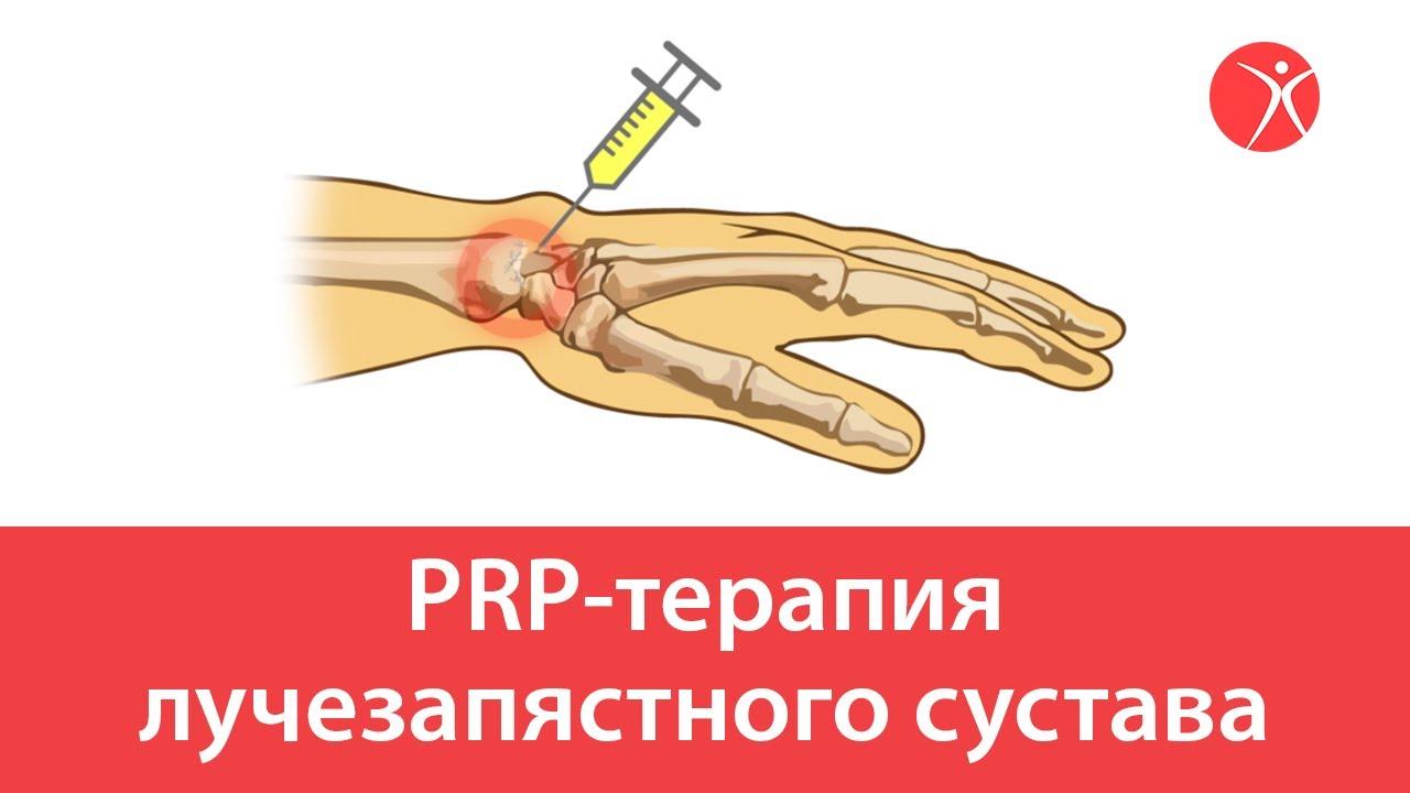 PRP-терапия лучезапястного сустава.Видео