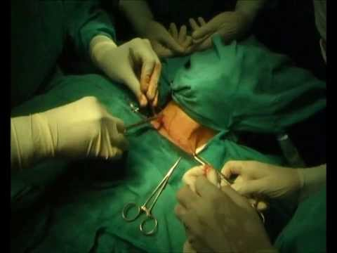 Right Hemi thyroidectomy complete surgery