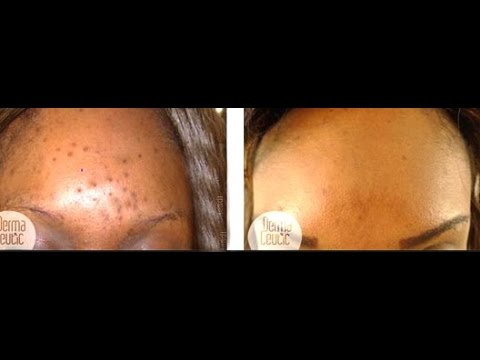 Skin  Lightening Discoloration: See Improvement in a Week [AHA]