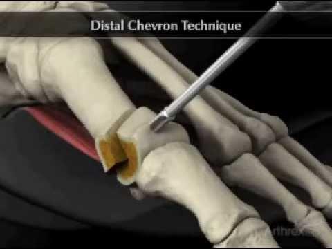 Austin bunionectomy procedure