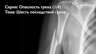 Опасность греха 14 Шесть последствий греха Алексей Осокин