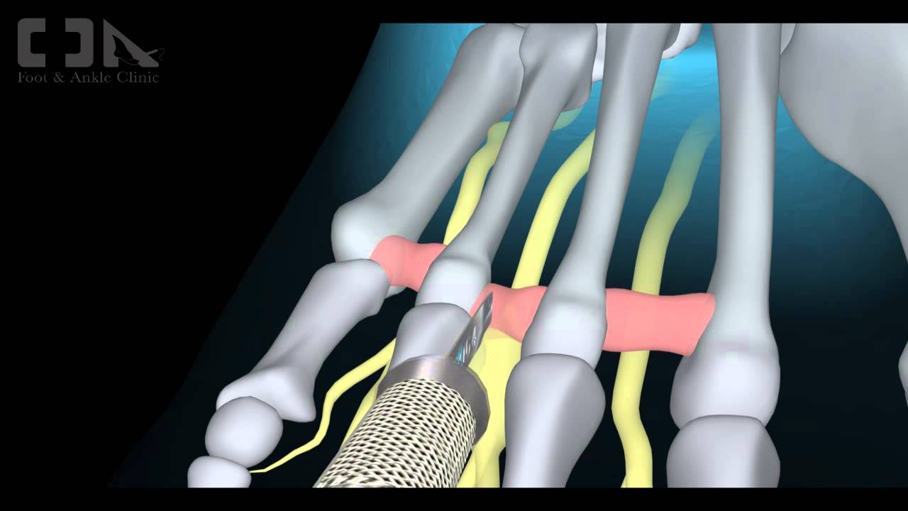 an overview of pes cavus and mortons neuroma