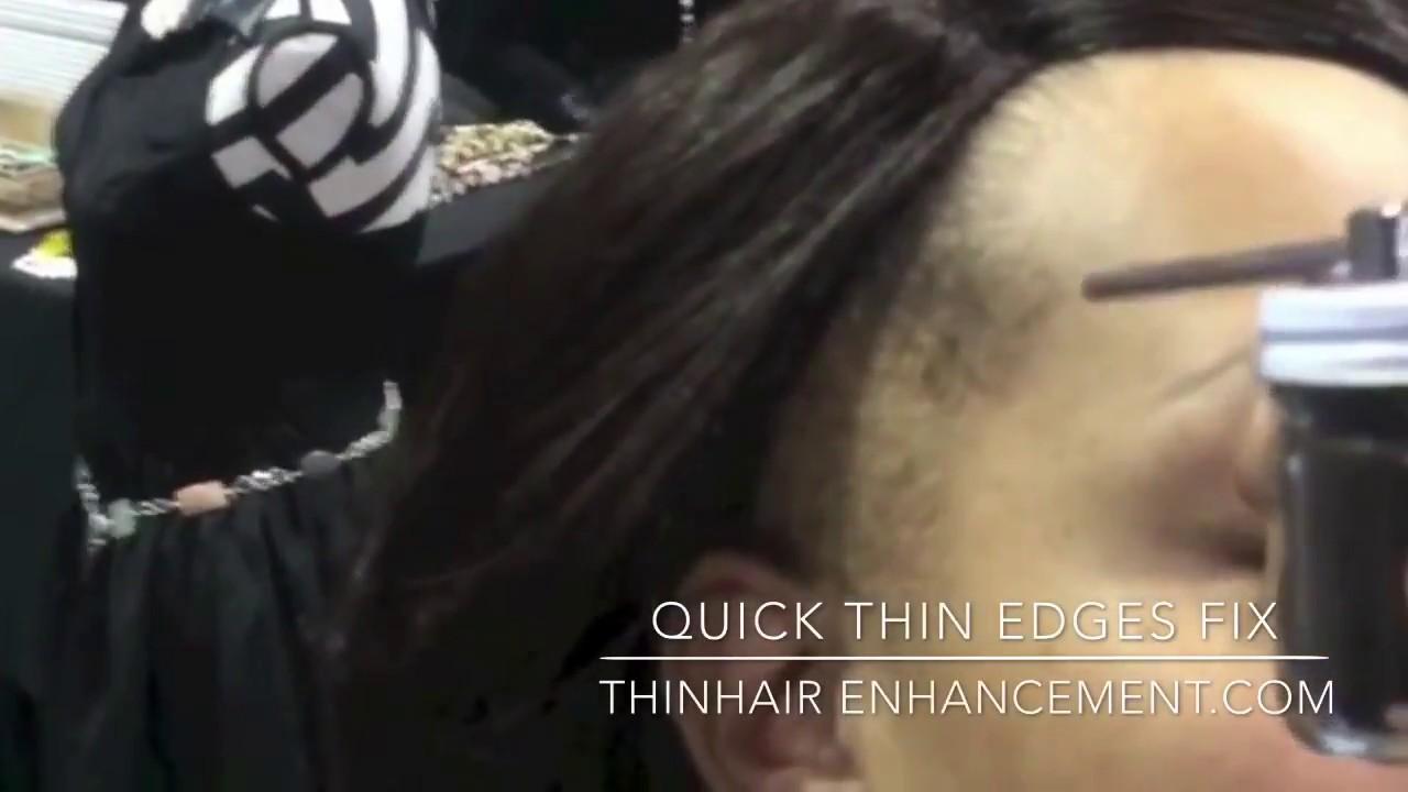 Quick Help For Thin Edges Hair Enhancement