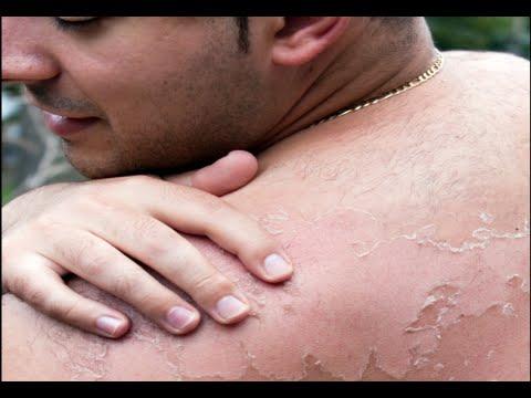 Image result for sunburn tanning pictures