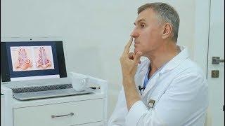 Пластический хирург: Почему я не делаю себе РИНОПЛАСТИКУ