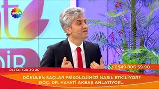 """Doç. Dr. Hayati Akbaş-""""Saç Ekiminde Başarı Oranı Neye Bağlıdır?""""- Show Tv"""