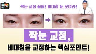 [모티브 성형외과] 짝눈 교정, 비대칭을 교정하는 핵심…