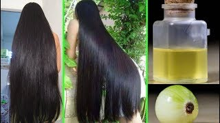 Amazing Homemade Onion Hair Oil for Double Hair Growth  | Onion Oil to get Long hair