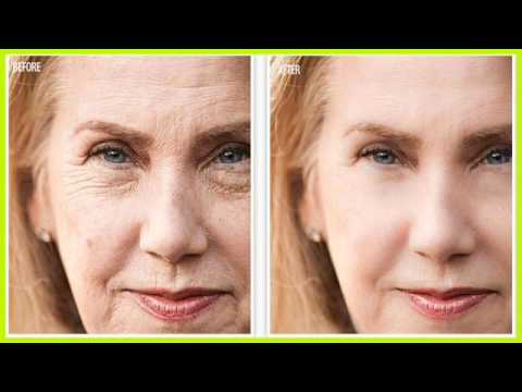 Best Anti Wrinkle Eye Creams Revitol Eye Cream Before And After