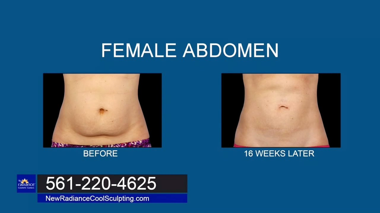 New Radiance CoolSculpting Before and After Photos