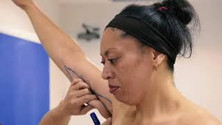 Chiquita's Post Weight Loss Arm Lift & Tummy Tuck