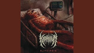 Forced Rectal Exhumation