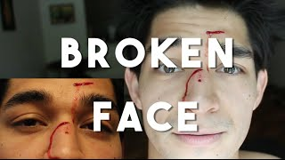 Broken Face (Joey Metrobank buddy - TVC 30 Philippines)