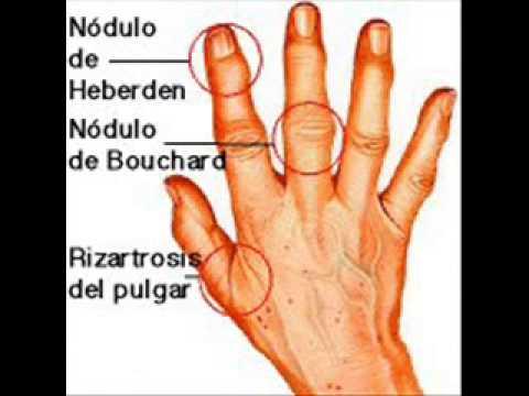 como se cura a gota manifestaciones del acido urico en la piel acido urico dedo gordo