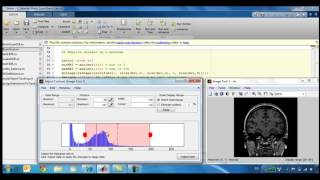 Medical Imaging Analysis and Visualization