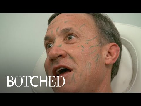 Dr. Terry Dubrow Freaks Out Paul With Face Filler Treatment | Botched | E!
