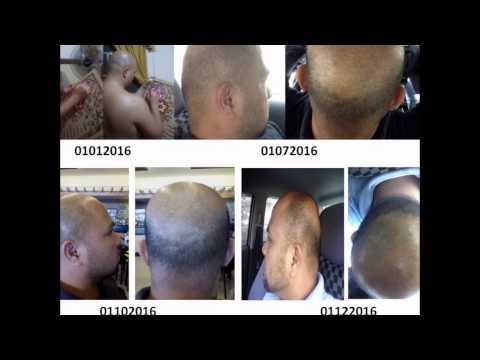 CHRIMI ORGANIC HAIR GROWER, THE BEST & REVOLUTIONARY HG