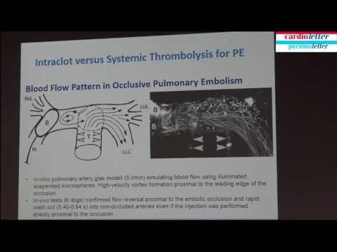 Rolf Engelberger: Severe pulmonary embolism: