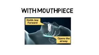 Sleep Apnea Mouthpiece Information - Learn Everything You Need to Know About Sleep Apnea Mouthpieces