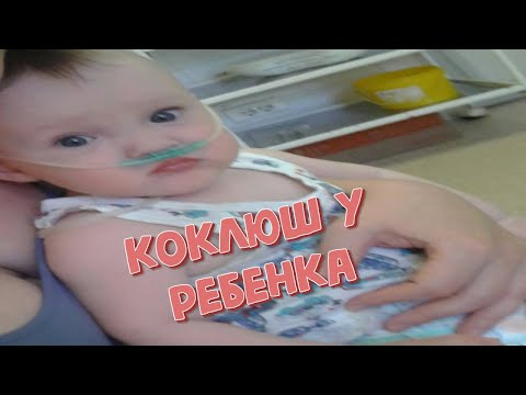 Коклюш у ребенка Заболели коклюшем Лечение коклюша