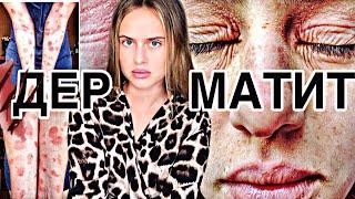 Атопический дерматит: борьба длиною в жизнь. Я, прежде чем смогла избавиться от кожных болезней