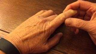 Mystery lump near finger knuckle