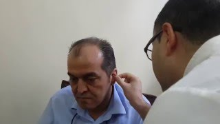 Auricular percutaneous vagus nerve stimulation