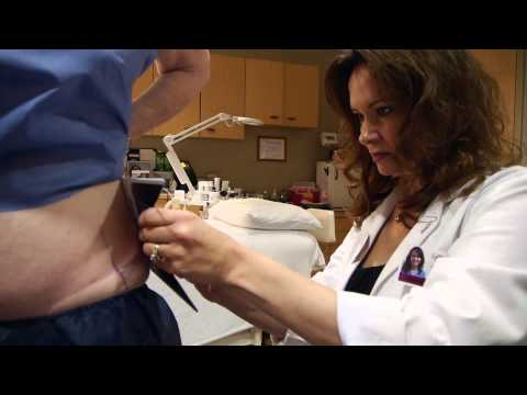 CoolSculpting in Lancaster, PA - The Plastic Surgery Group - How it Freezes Away Fat