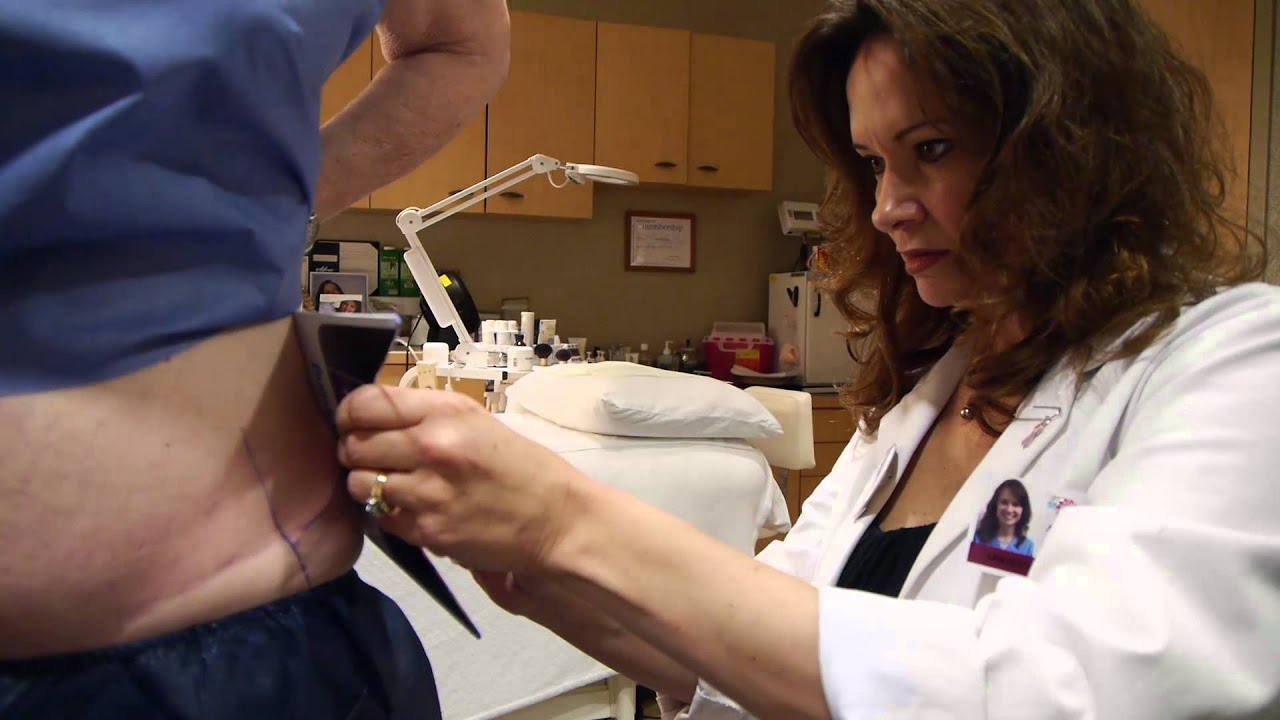 Coolsculpting In Lancaster Pa The Plastic Surgery Group How It