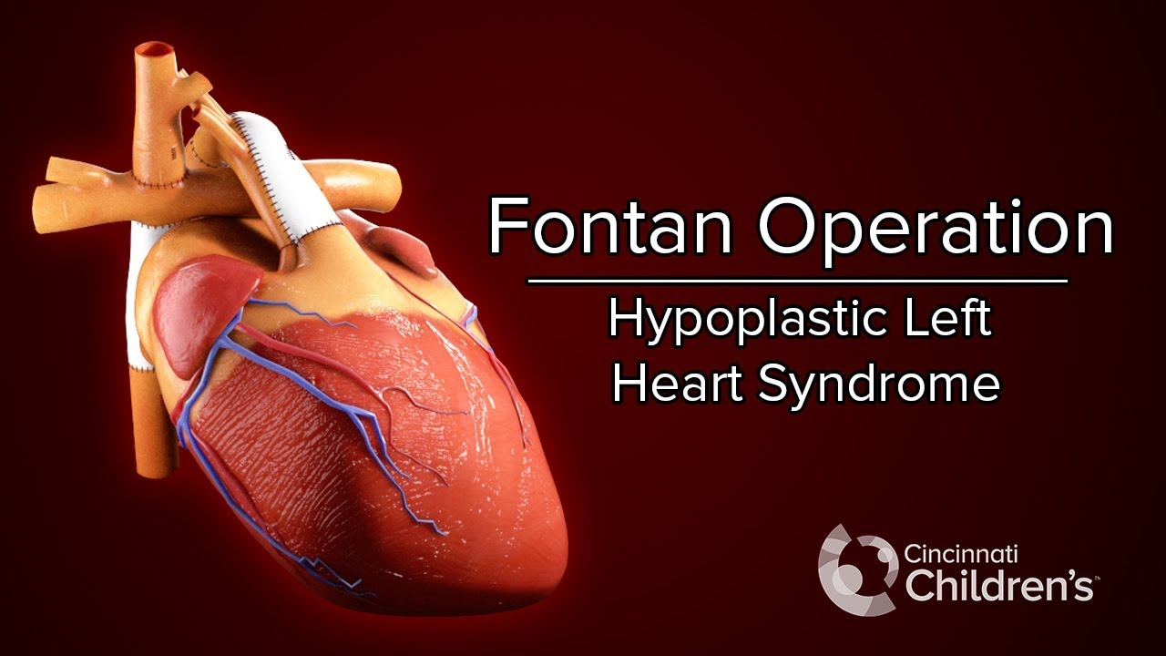 Hypoplastic Left Heart Syndrome (HLHS) | Diagnosis and