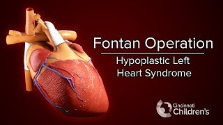 Medical Animation: Fontan Operation | Cincinnati Children
