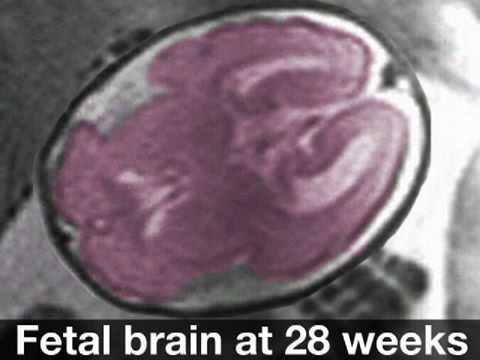 Fetal Development Week 28 (Pregnancy Health Guru) - YouTube
