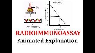 Radioimmunoassay (RIA): Animated explanation