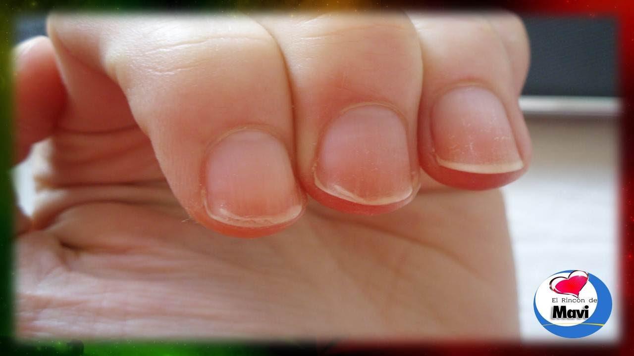 Remedios caseros para fortalecer las uñas quebradizas y debiles ...