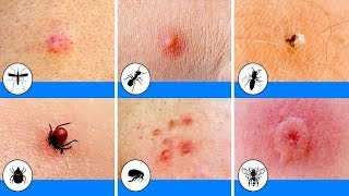 أخطر 10 لدغات الحشرات في العالم Youtube