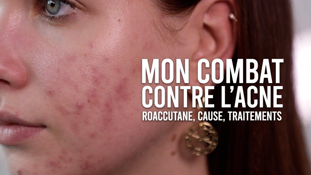 en ligne datant cicatrices d'acnérencontres français meubles