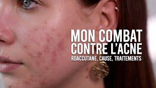 MON COMBAT CONTRE L'ACNÉ (CAUSE, TRAITEMENTS & MON AVIS SUR ROACCUTANE)