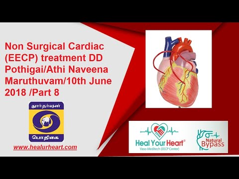 non surgical eecp dd pothigai athi naveena maruthuvam 10th june 2018 2018 part 8