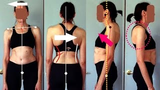 Posture Analysis - What is wrong with your posture?